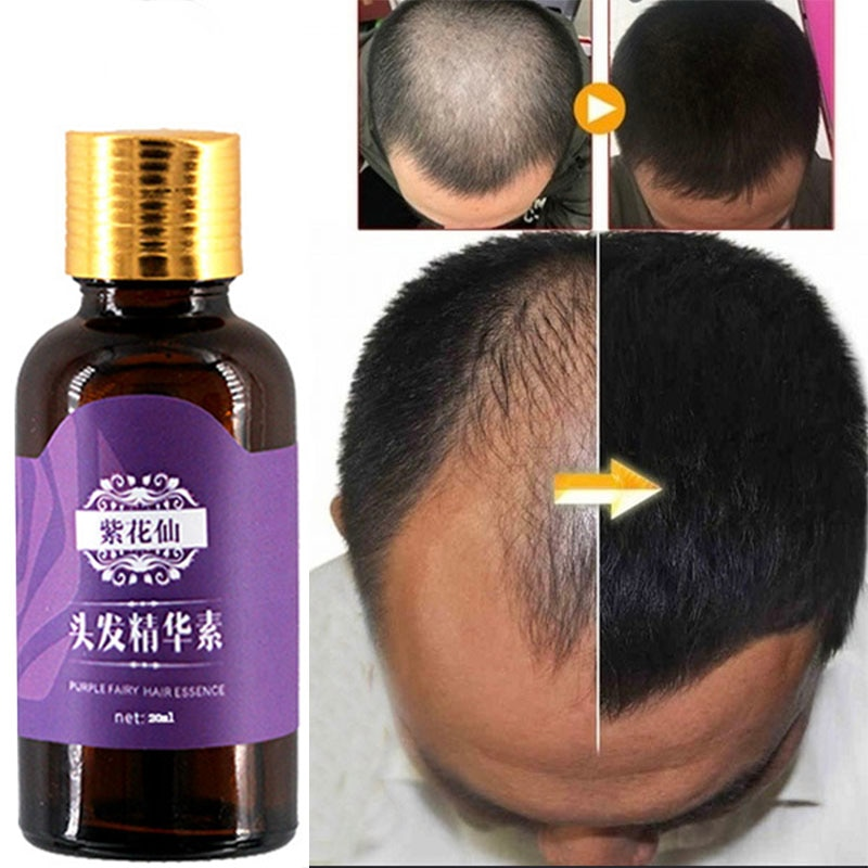 Natural hair loss products, no side effects, faster hair growth