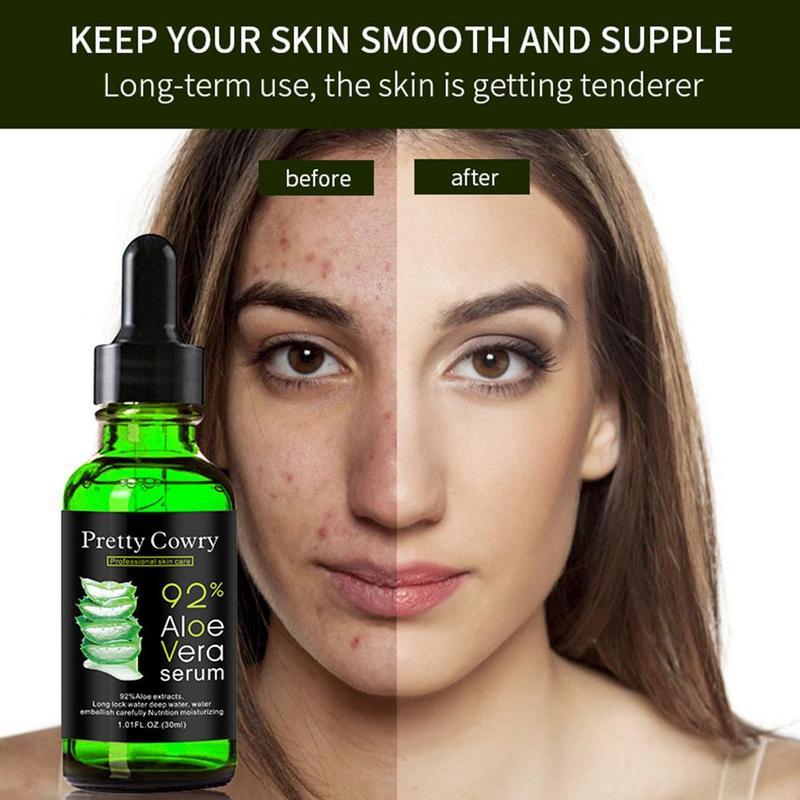 Aloe Vera Serum Acne Scar Removal Essence Acne Spots Whitening Skin Care Treatment Care Remove 30ML Face Acne dropshipping недорого