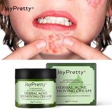 AUQUEST Acne Treatment Face Cream Oil Control Shrink Pores Remove Freckles Cream Skin Face Care Beau