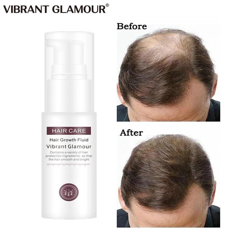 Fast Hair Growth Spray Essence Oils Ginger Hair Loss Treatment For Thinning Hair Products Liquid Hai