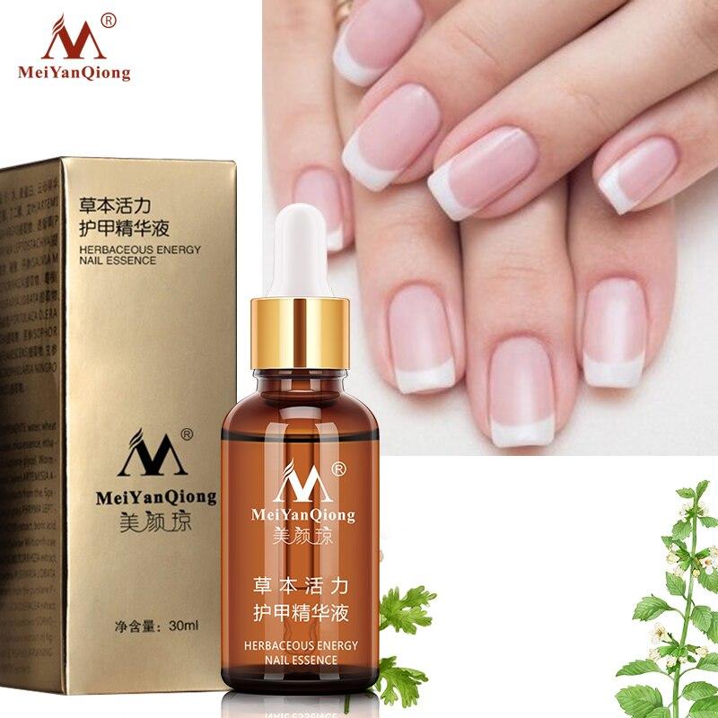 Meiyanqiong Onychomycosis Fungal Nail Treatment Serum Nail Repair Nail Fungus Removal Anti Infection Gel Paronychia Nail Care