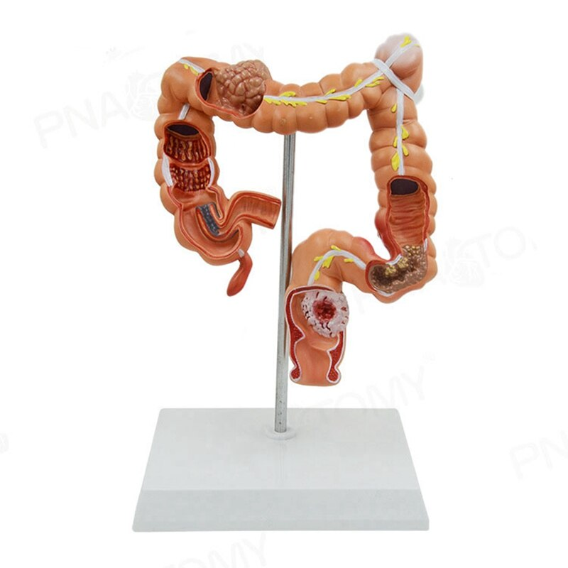NEW-Teaching Model Human Large Intestine Anatomical Model Visceral Colon and Rectum Pathological Model for School