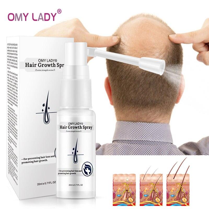 OMY LADY Anti Hair Loss Hair Growth Spray Essential Oil Liquid For Men Women Dry Hair Regeneration R