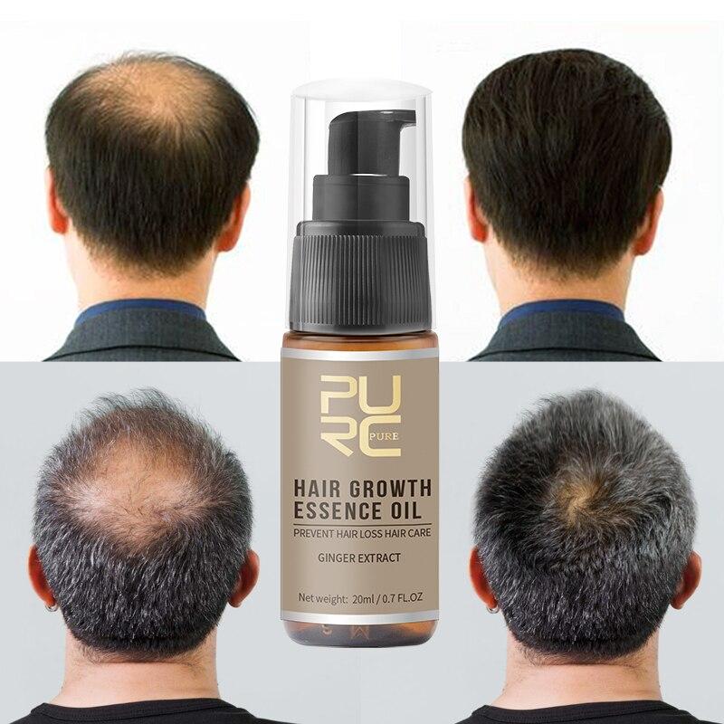 Очиститель 20 мл имбирный Уход за волосами Лечение роста волос спрей от выпадения волос питает корень Уход за волосами Лечение TSLM2