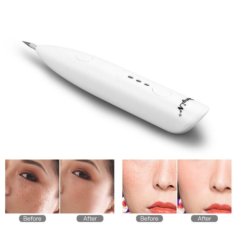 CkeyiN Dot Mole Pen Laser Plasma Mole Removal Dark Spot Remover Skin Care Point Pen Skin Freckle Wart Removal Tool Beauty Care