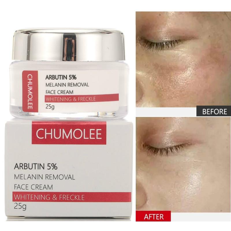 Chumolee Alpha Arbutin 5 Whitening Freckle Facial Cream Melasma Remove Acne Dark Spots Melanin Pigment Moisturizer Face Care Facial Self Tanners Bronzers Aliexpress