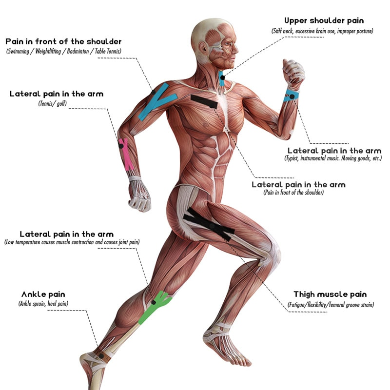 Elastoplast Perban Olahraga Plester Kinesiologi Medis Perekat Pita Kinesio Tahan Air Banyak Pemulihan Atletik Pereda Nyeri Otot