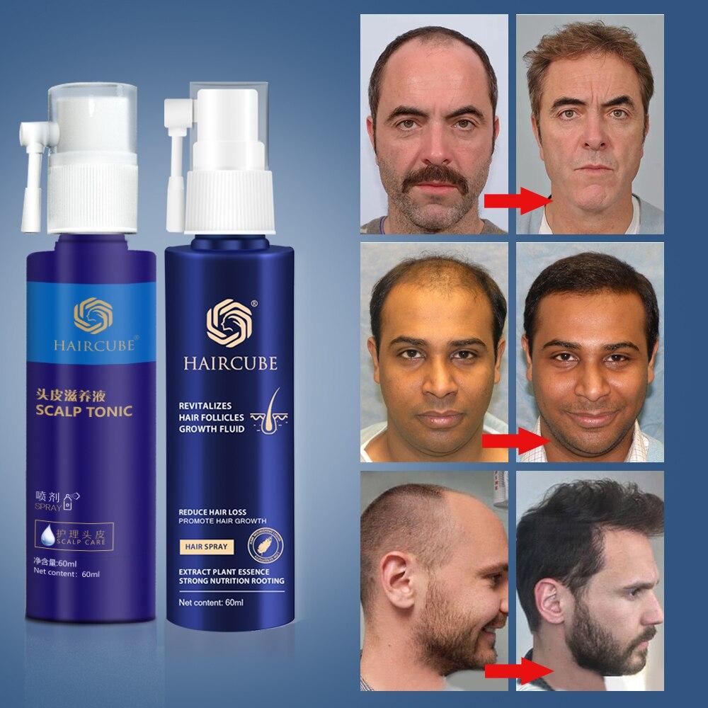 مصل نمو الشعر للرجال والنساء ، خلاصة نمو الشعر ، زيت عطري ، علاج تساقط الشعر