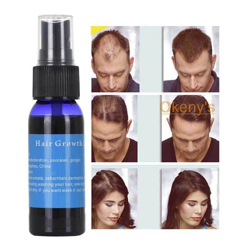 30ml eficaz gengibre crescimento rápido cabelo essência líquida okeny do cabelo de crescimento rápido okenys yuda produto de tratamento de cabelo pilatório tslm1