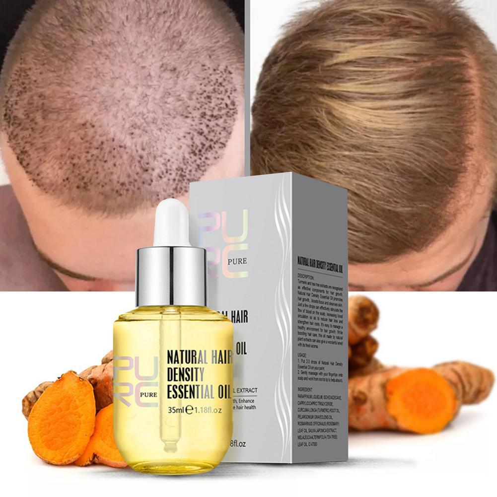 35ML 1pcs Hair Repair Essence Nourishing Oil Anti-Hair Loss Care Oil Anti-dropping Essential Oil Men