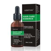 30ml Hair Growth Essential Oil Anti Hair Loss Essence Repair Damage Hair Growth Treatment Thick Root