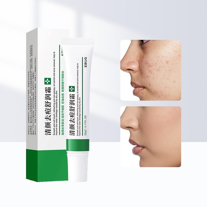 Effective Acne Removal Cream Acne Treatment Fade Acne Spots Oil Control Shrink Pores Whitening Moisturizing Acne Cream Skin Care недорого