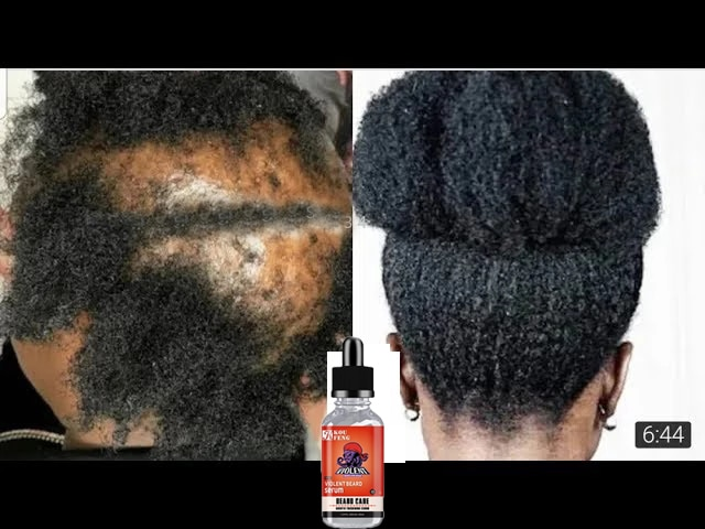 Уход за волосами для роста волос эфирное Масла эссенция, оригинальный и аутентичный с 100% выпадения волос жидкость здоровье и гигиена Красот...