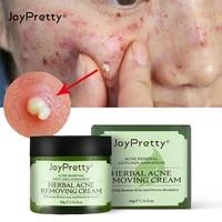 50g acne repair cream tea tree acne cream gentle to acne closed mouth acne marks acne repair cream skincare