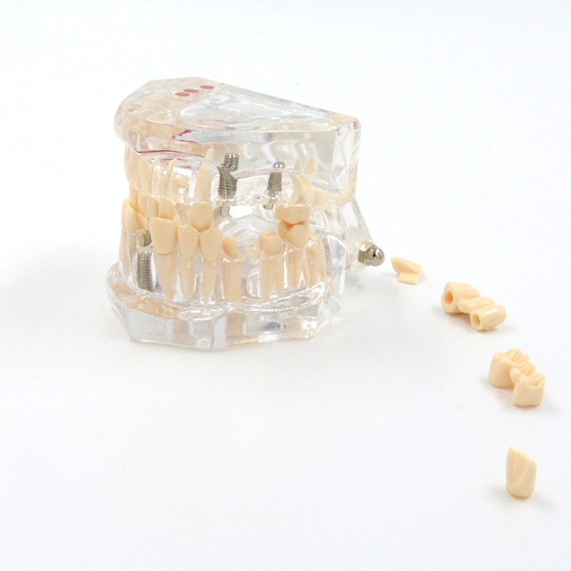 Supply dental model transparent pathological repair human dental model