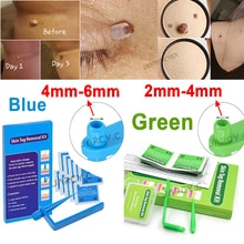 Skin Tag Removal Kit Papillomas Treatment Skin Cleansing Tools Micro Band 4-6mm For Berrugas Warts R