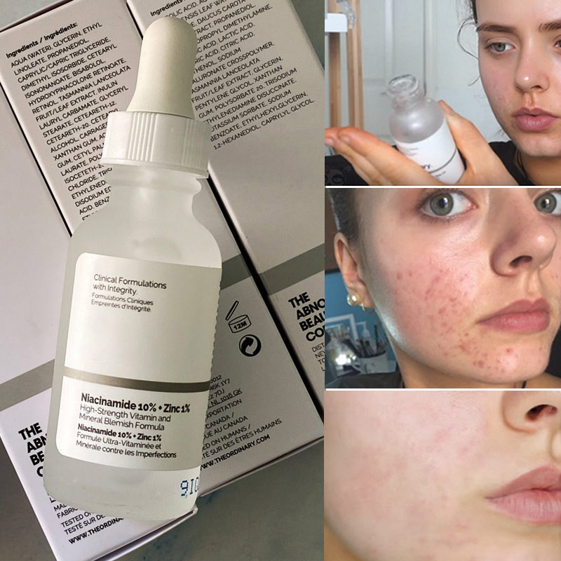 Niacinamide 10% + Zinc 1% Ordinary High Vitamin and Mineral Essence Minimizes Pores Regulates Sebum Brighten Skin Facial Serum