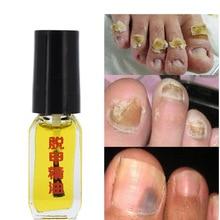 Efecto de 3 días eliminación de hongos esencia líquido tratamiento de hongos para uñas brillantes Reparación de uñas Anti-infección cuidado de los pies onicomicosis