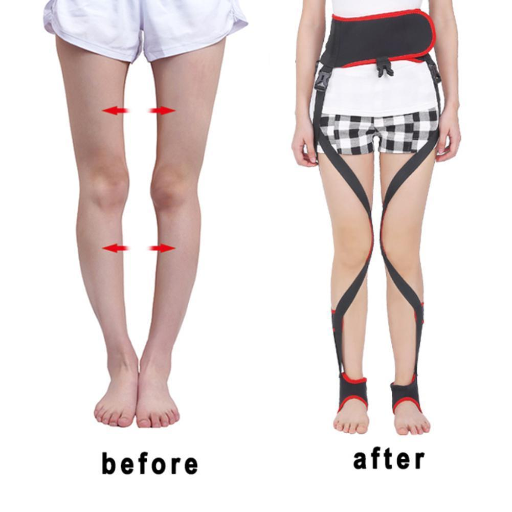 Corrector de piernas O/X para día y noche, Leggings bonitos y piernas con corrección, corrección corporal de piernas con Corre de postura Z6D3