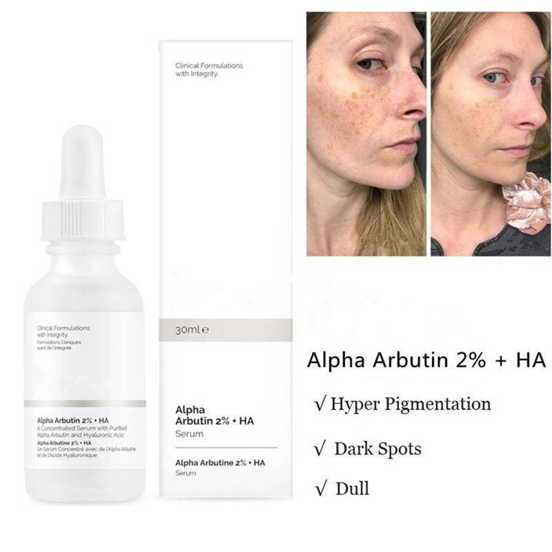 Alpha Arbutin 2% + Ha 30ml Ordinary Foundation Liquid Acne Spot Removing Pores Unclog Clear Face Ski