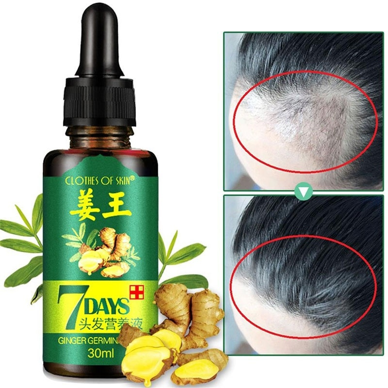 30ML Hair Growth Ointment 7 Day Ginger Germinal Serum Essence Oil Loss Treatement Growth Hair Hair Care Nutrient Solution