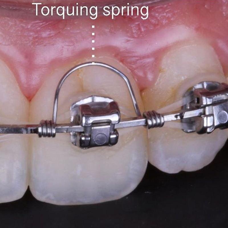 NSKLED 10 unids/bolsa Dental ortodoncia tuerces primavera
