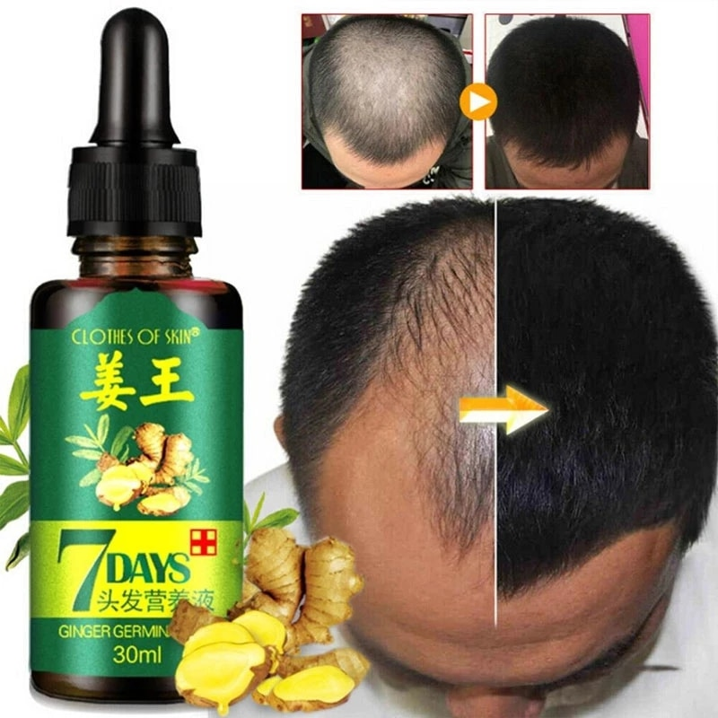 3PCS Ginger Hair Growth Essence 7 Days Germinal Hair Growth Serum Essence Oil Hair Loss Treatment Gr