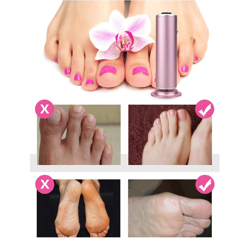Multifunctional Electric Foot Grinder Foot Grinding Machine Exfoliating Dead Skin Callus Remover Foot Care Pedicure Device enlarge