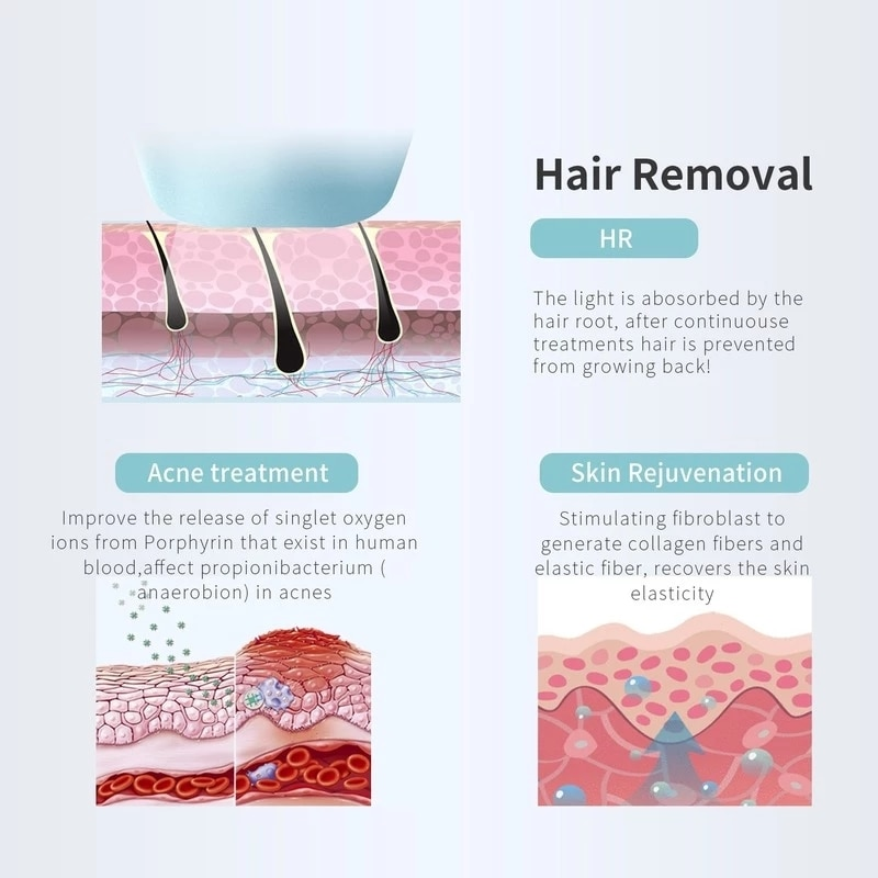 Mlay Laser Epilator IPL Hair Removal Machine Skin Rejuvenation Acne Clearance Hair Removal Device for Women with 500000 Shots enlarge