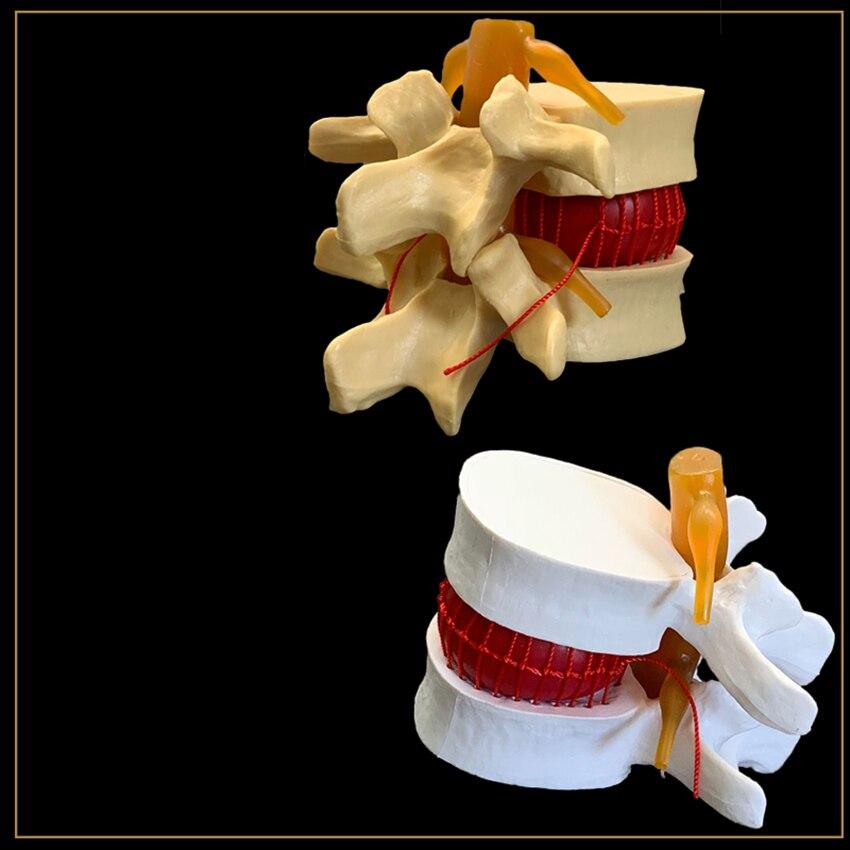 Modelo de espina humana-blanco, amarillo modelo de demostración de hernia de disco Lumbar degenerativa
