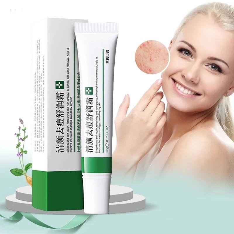Remove Acne Oil Control Shrink Pores Deep Brighten Moisturizing Skin Care Acne Cream 20g Face Cream  Face Care  Whitening Cream недорого