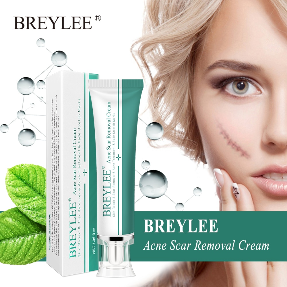 30g BREYLEE Acne Scar Removal Cream Face Cream Skin Repair Skin Care Scar Acne Treatment Remove Stretch Marks Whitening Cream недорого