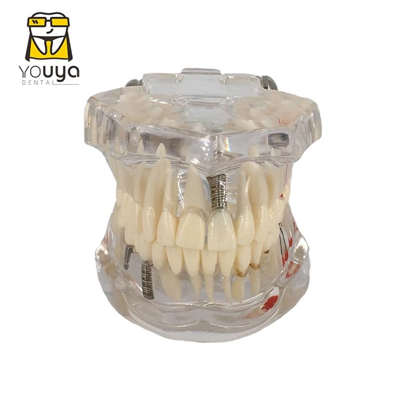 Transparent Disease Teeth Model Dental Implant Teeth Model Dentist Dental Student Learning, Teaching, Research Communication