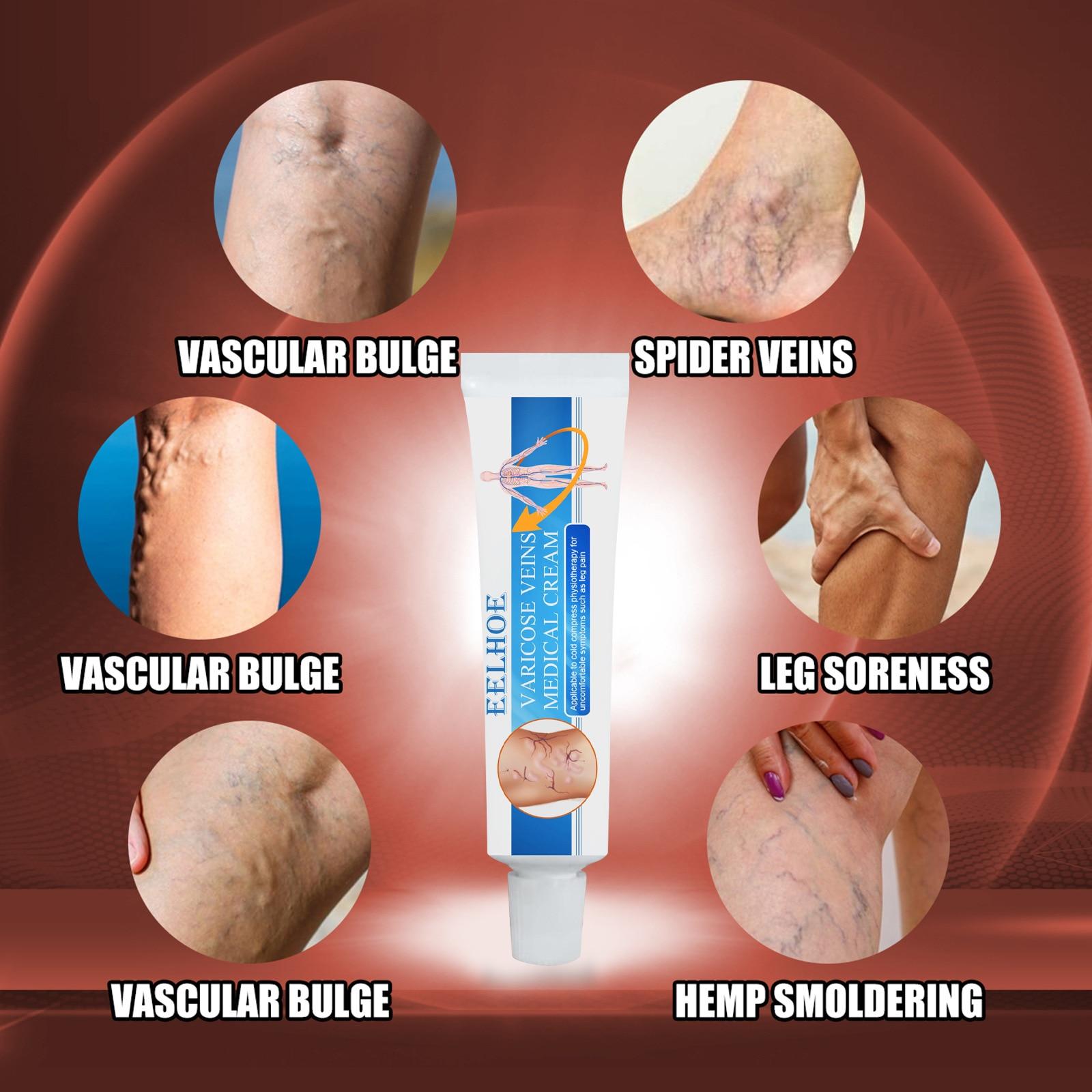 Leg and Vein Pain Relief Cream, Skin Care Lotion, Skin Vein Care Cream, Vein Massage Cream handheld vein finder vein locator infrared vein viewer localizador de venas