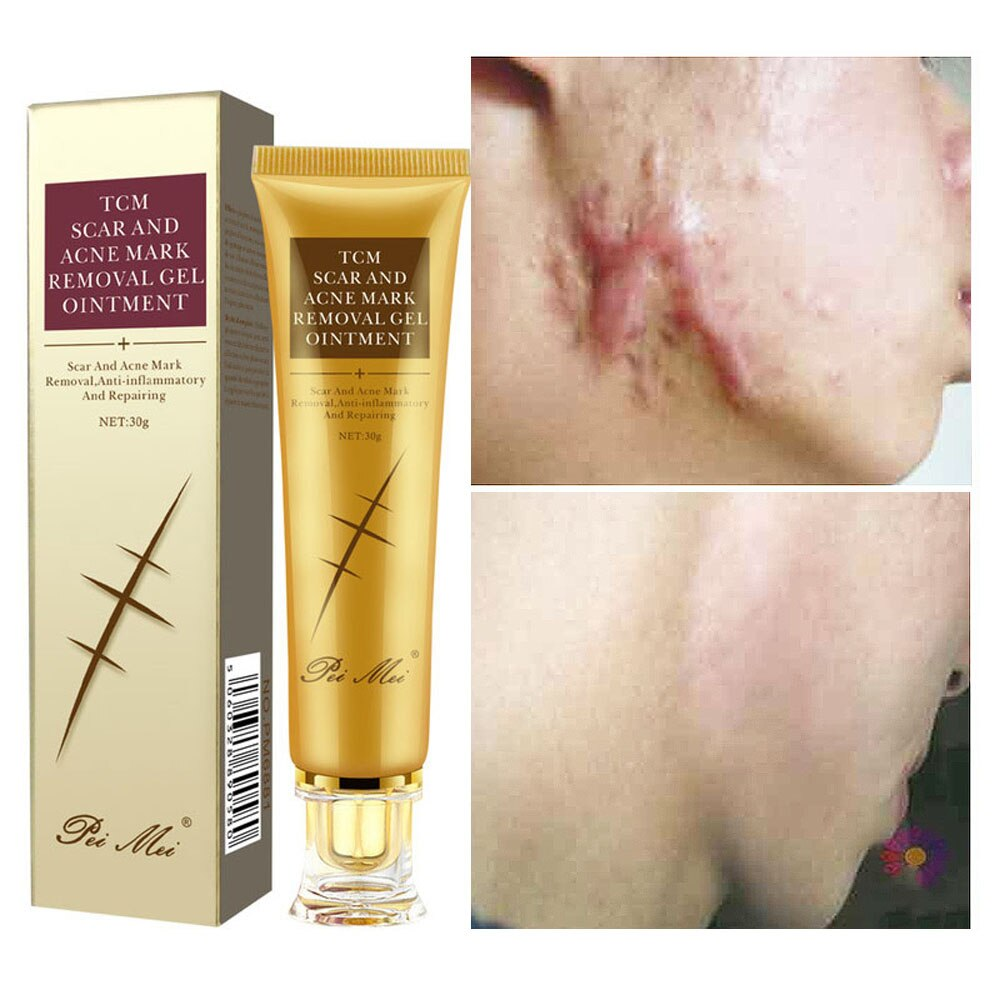 30g Acne Scar Removal Cream Pimples Stretch Marks Face Gel Remove Acne Smoothing Whitening Moisturizing Body Skin Care Aichun недорого