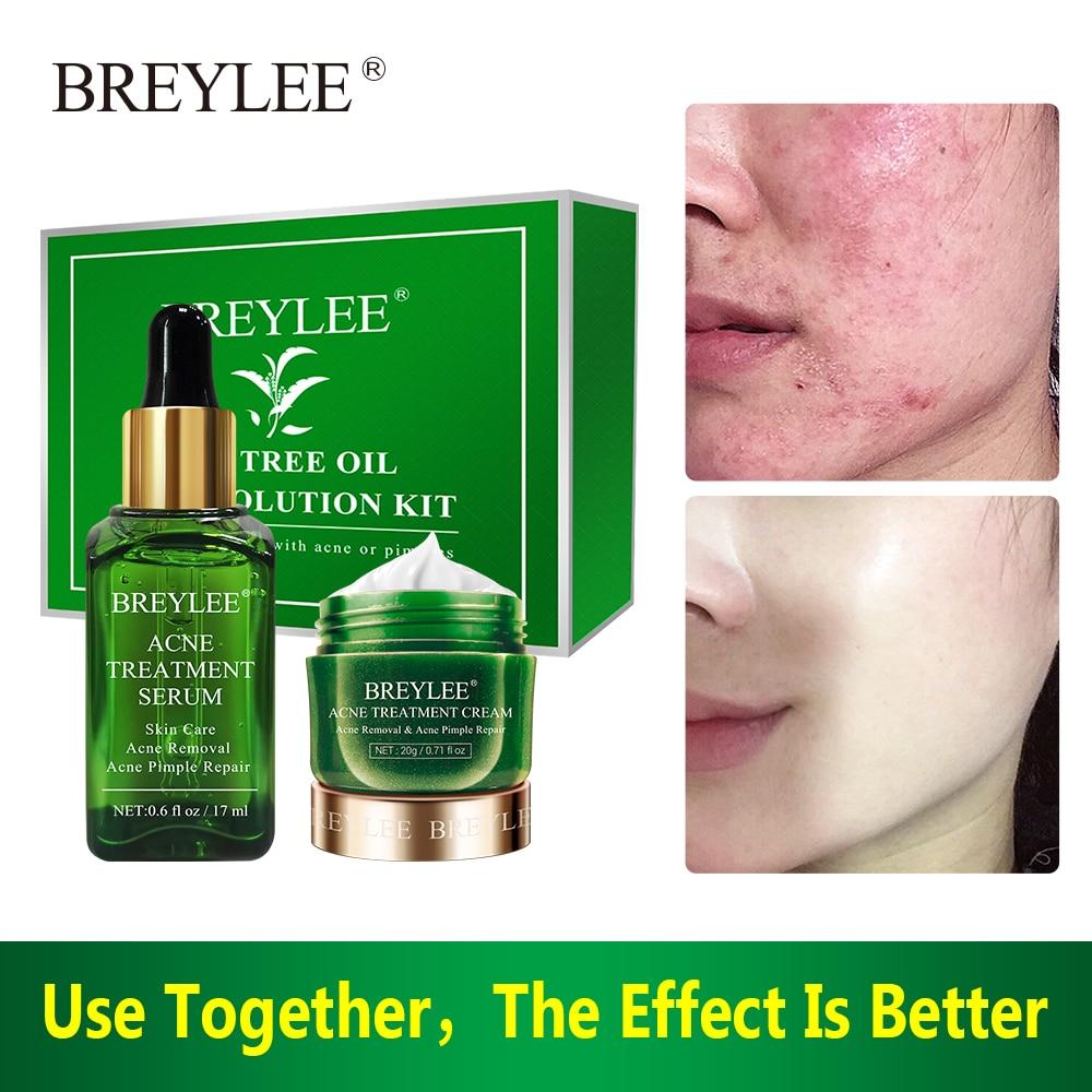 BREYLEE Anti Acne Repair Set Facial Acne Treatment Removal Oil Control Cream Shrink Pores Moisturizing Face Skin Care Serum недорого