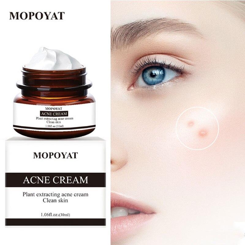 Natural Acne Removal Cream Acne-Treatment Face Cream Oil-Control Moisturizing Nourishing Face Care Pores Shrinking Soothe Skin недорого