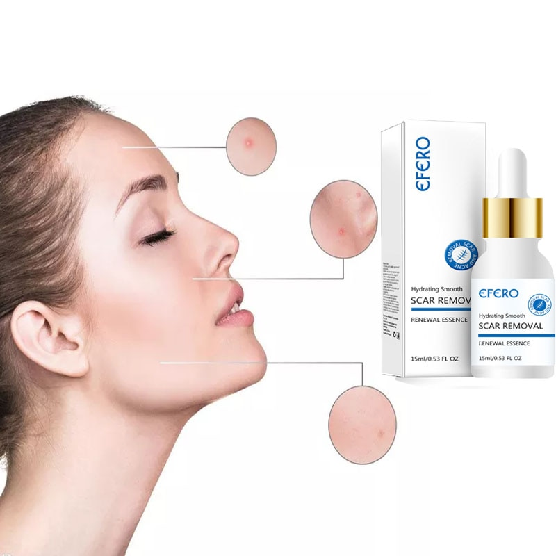 EFERO-tratamiento para eliminar cicatrices, acné, aceite de marca antiestiramiento, reductor de poros,...
