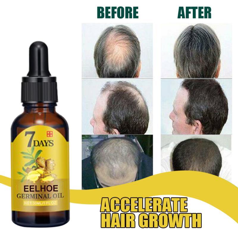 Hair Care Hair Growth E Ssential Oils Effective Natural Ginger Plant Hair Loss Beauty Dense Hair Gro