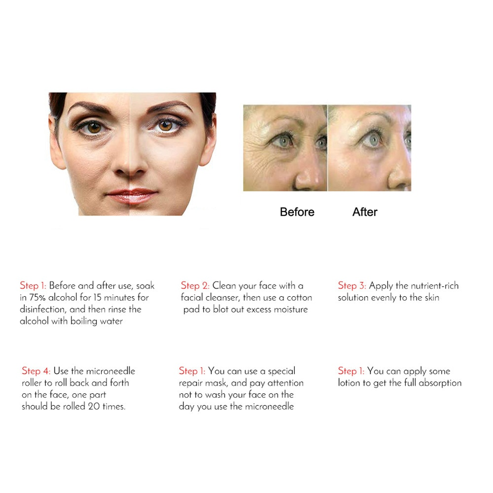Titanium Micro Needle 540 Roller Derma Roller Dermaroller Hair Regrowth Beard Growth Anti Hair Loss Treatment Thinning Receding