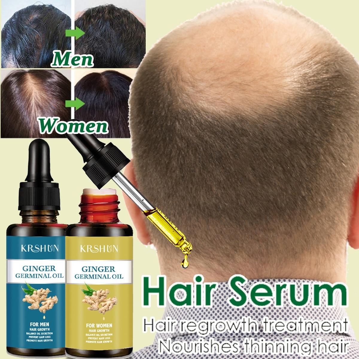 10ml/20ml/30ml/50ml Hair Growth Products for Men Women Natural Oil Serum Grow Fast Treatment
