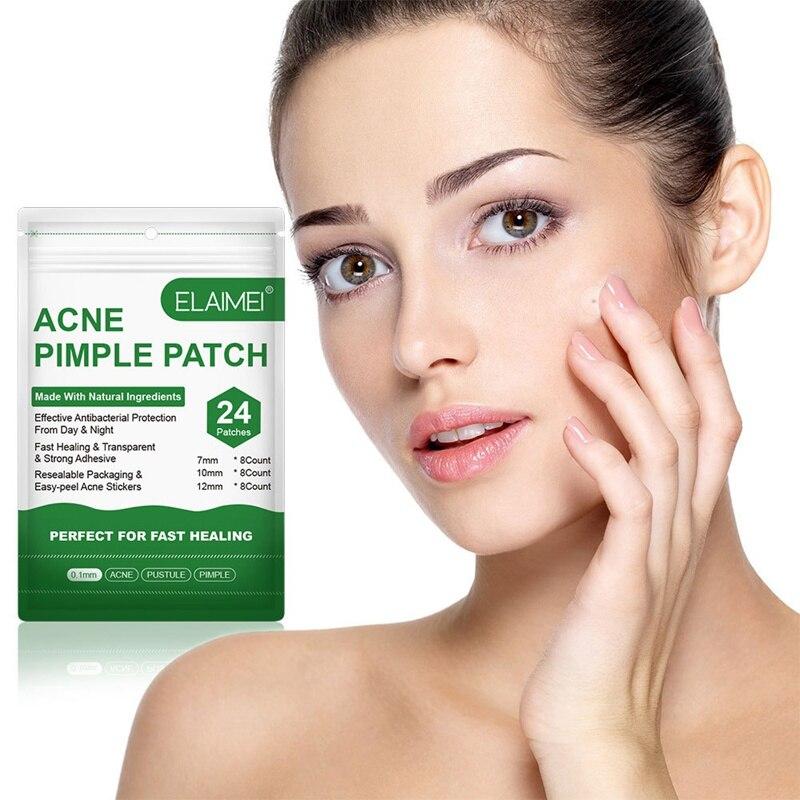 Quitar la cara crema de esencia árbol de té Natural acné palos de cuidado de la piel parche suero granos, acné tratamiento pegatinas
