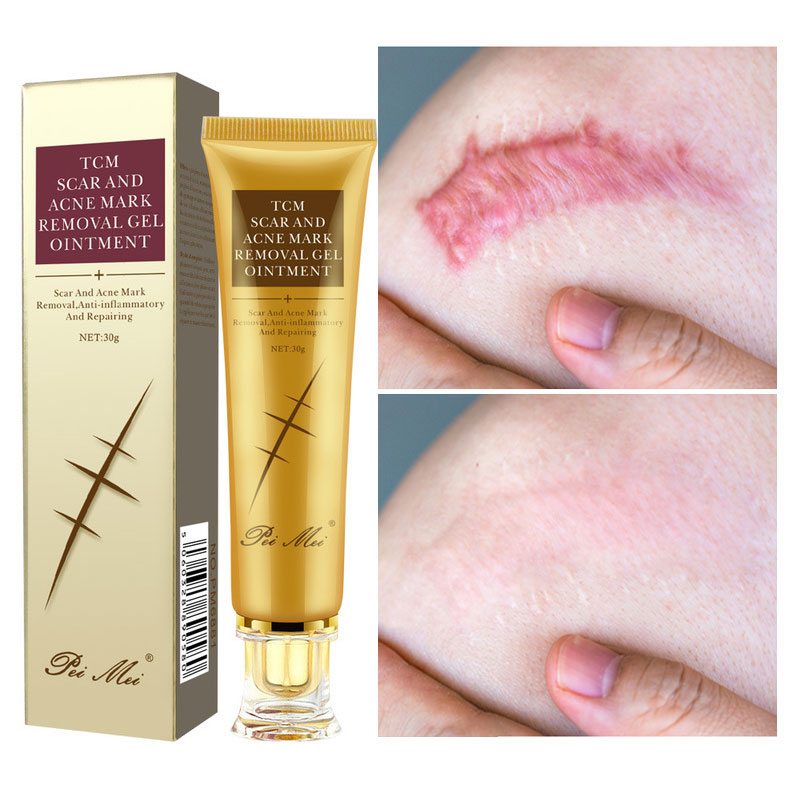 Acne Scar Removal Cream Gel Face Pimples Stretch Marks Cream Repairing Smoothing Whitening Moisturiz