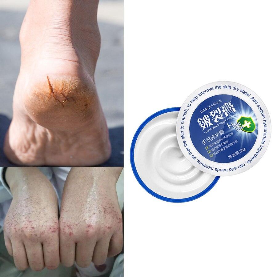 58g Hand Foot Cream Repair Feet Cream Heel Cracked Repair Remove Oil Anti-Drying Frostbite Crack Callus Dead Skin Hand Feet Care недорого