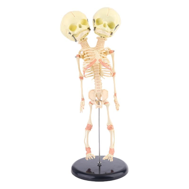 Human Double Head Baby Skull Research Model Skeleton Anatomical Brain Anatomy Teaching Study Display human 1 1 right hemisphere functional area anatomy human brain model medicine teaching mdn006