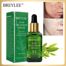 BREYLEE Acne Treatment Serum Face  Anti Acne Removal Repair Pimple Facial Essence Skin Care Shrink Pores Whitening Smooth Skin