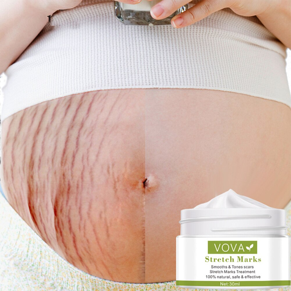 Vova Effective Remove Pregnancy Scars Acne Cream Stretch Marks Treatment Maternity Repair Anti-Aging Anti-Winkles Firming Body C недорого