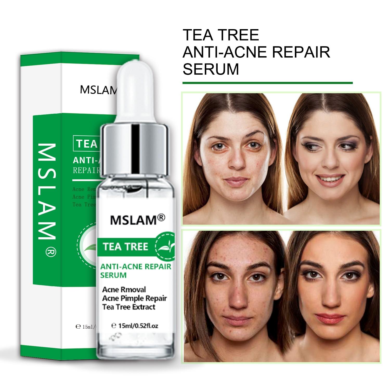 bibamei azelaic acid soothing acne cream fades acne marks shrinks pores gentle skin care repairs acne skin acne treatment MSLAM Tea Tree Anti-acne Essence Repairs Acne Acne Fades Acne Scars Shrinks Pores Whitening Moisturizes Facial Skin Care 15ml
