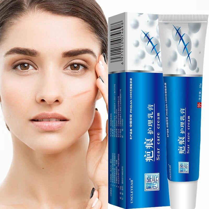 Acne Scar Removal Cream Stretch Marks Face Gel Surgical Scars  Pigmentation Corrector Scars Repair Cream Body Skin Care Aichun недорого