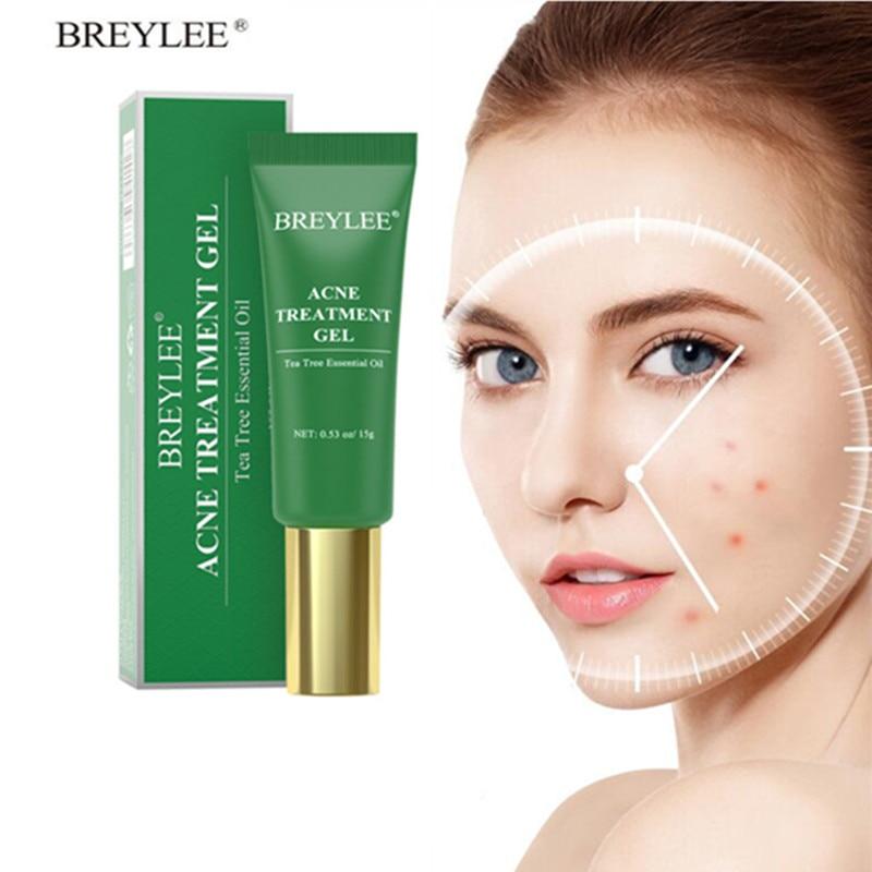Anti Acne Gel Cream Eliminate Acne Removal Oil Control Moisturizer Repair Spot Shrink Pores Acne Treatment Serum Skin Care 15g